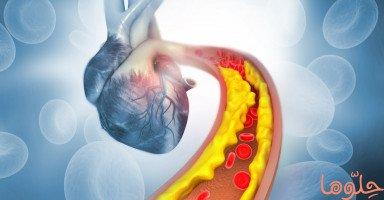 الكوليسترول ومخاطر ارتفاعه