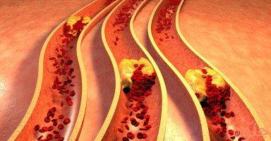 أعراض الجلطة الدموية (Blood Clot)