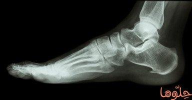 أسباب المناقير العظمية وطرق علاجها