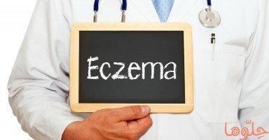 أسباب وأعراض أكزيما الجلد وطرق علاج الأكزيما