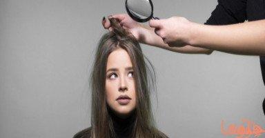 قشرة الشعر: حقائق، أسباب، علاج