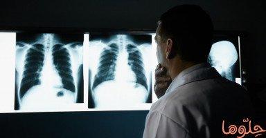 سرطان الرئة (Lung Cancer)