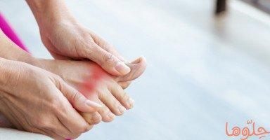 أعراض وعلاج مرض النقرس