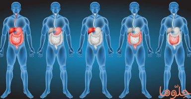 انسداد الأمعاء (Bowel Obstruction)