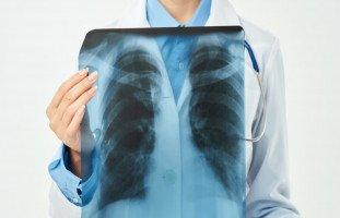 ما هي أسباب ألم الصدر؟