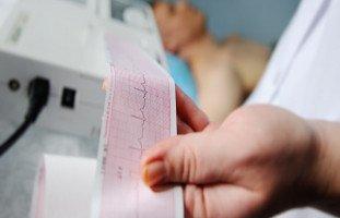 ما هو تخطيط القلب الكهربائي ولماذا يتم إجراء تخطيط القلب؟
