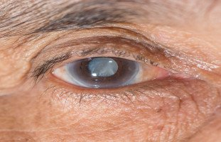 أسباب وأعراض الماء الأزرق في العين (الزّرق)