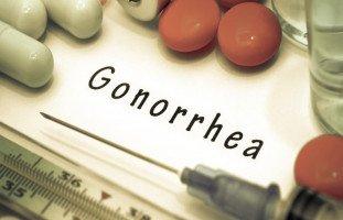 أعراض وعلاج السيلان البني (Gonorrhea)