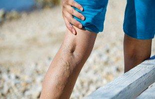 أسباب دوالي الساقين وطرق علاجها
