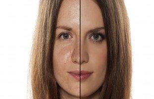 البشرة الدهنية وطرق علاجها