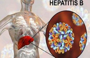 أعراض التهاب الكبد من النمط B