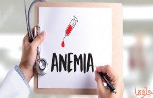 فقر الدم (الأنيميا): الأنواع، الأسباب، الأعراض، العلاج