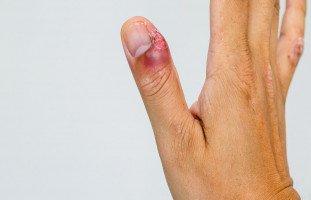 الداحس أو التهاب ما حول الظفر والاصبع المدحوس (paronychia)