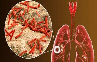 أعراض وعلاج مرض السل