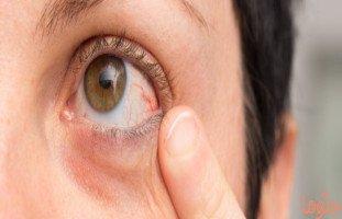 مرض بهجت: الأسباب، الأعراض، العلاج