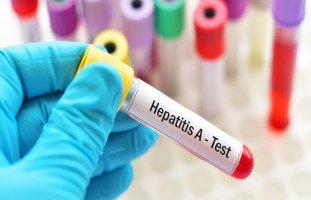 أعراض التهاب الكبد من النمط A