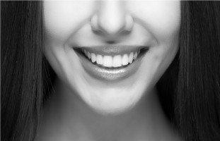 كل شيء عن تبييض الأسنان ومشاكلها، مع الدكتورة لينا حمدان :)